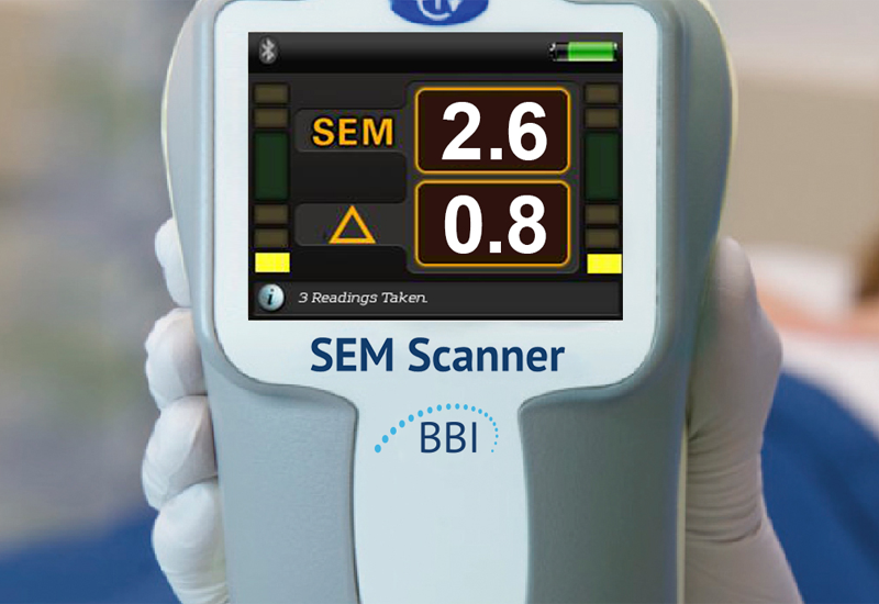 Pressure ulcer scanner gets top tech assessment from NICE - Home